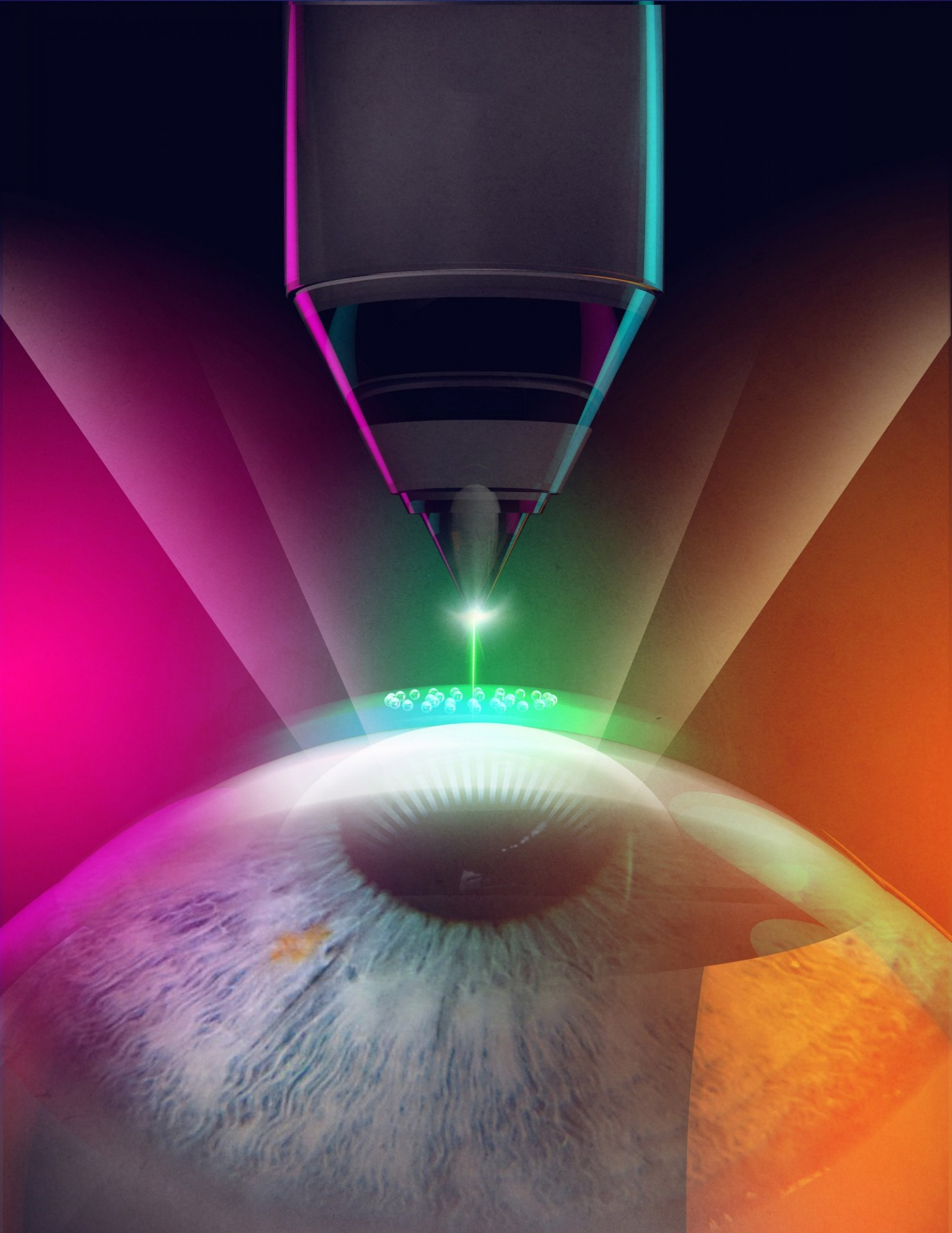femtosecond laser treatment of the eye